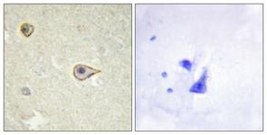 IHC of paraffin-embedded human brain tissue, using Cytochrome P450 19A1 Antibody. The picture on the right is treated with the synthesized peptide.