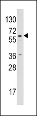 Western blot of anti-CYP19A1 antibody in Jurkat cell line lysates (35 ug/lane). CYP19A1 (arrow) was detected using the purified antibody.