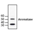 Western blot of Aromatase in human brain cell lysate.
