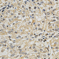 Immunohistochemistry of paraffin-embedded human kidney cancer using CYP19A1 antibody at dilution of 1:200 (x400 lens)
