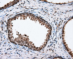 IHC of paraffin-embedded prostate tissue using anti-CYP1A2 mouse monoclonal antibody. (Dilution 1:50).