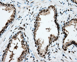 IHC of paraffin-embedded Carcinoma of prostate tissue using anti-CYP1A2 mouse monoclonal antibody. (Dilution 1:50).