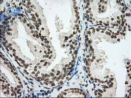 IHC of paraffin-embedded Human prostate tissue using anti-CYP1A2 mouse monoclonal antibody. (Dilution 1:50).
