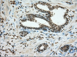 IHC of paraffin-embedded Carcinoma of Human prostate tissue using anti-CYP1A2 mouse monoclonal antibody. (Dilution 1:50).