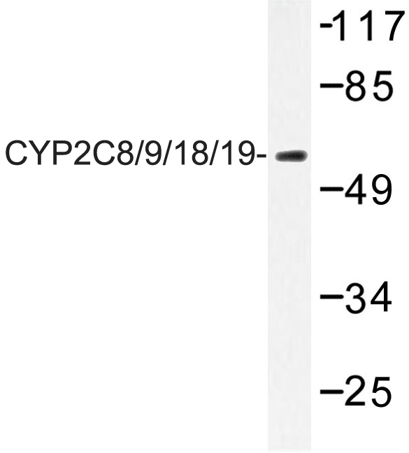 CYP2C8+9+18+19 Antibody - Western blot of CYP2C8/9/18/19 (M136) pAb in extracts from LOVO cells.