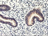 IHC of paraffin-embedded Human endometrium tissue using anti-CYP2J2 mouse monoclonal antibody.