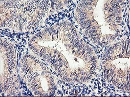 IHC of paraffin-embedded Adenocarcinoma of Human endometrium tissue using anti-CYP2J2 mouse monoclonal antibody.