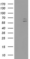 HEK293T cells were transfected with the pCMV6-ENTRY control (Left lane) or pCMV6-ENTRY CYP2J2 (Right lane) cDNA for 48 hrs and lysed. Equivalent amounts of cell lysates (5 ug per lane) were separated by SDS-PAGE and immunoblotted with anti-CYP2J2.