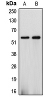 Western blot analysis of Cytochrome P450 2J2 expression in HepG2 (A); A549 (B) whole cell lysates.
