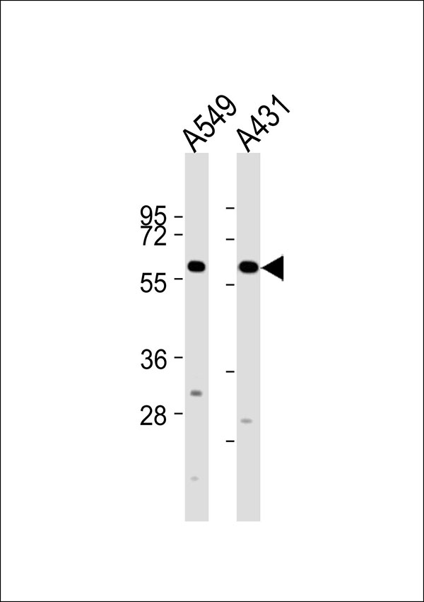 All lanes : Anti-Cytochrome P450 2J2 Antibody at 1:2000 dilution Lane 1: A549 whole cell lysates Lane 2: A431 whole cell lysates Lysates/proteins at 20 ug per lane. Secondary Goat Anti-Rabbit IgG, (H+L),Peroxidase conjugated at 1/10000 dilution Predicted band size : 58 kDa Blocking/Dilution buffer: 5% NFDM/TBST.
