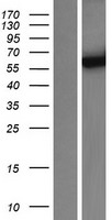 CYP3A4 / Cytochrome P450 3A4 Protein - Western validation with an anti-DDK antibody * L: Control HEK293 lysate R: Over-expression lysate