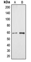 CYP4A11+22 Antibody - Western blot analysis of Cytochrome P450 4A11/22 expression in HeLa (A); HUVEC (B) whole cell lysates.