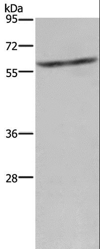 Western blot analysis of Mouse liver tissue, using CYP4A11 Polyclonal Antibody at dilution of 1:250.