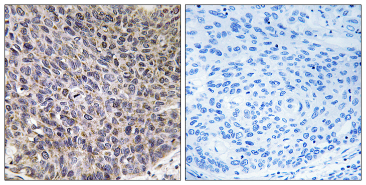 Immunohistochemistry analysis of paraffin-embedded human lung carcinoma tissue, using Cytochrome P450 4B1 Antibody. The picture on the right is blocked with the synthesized peptide.