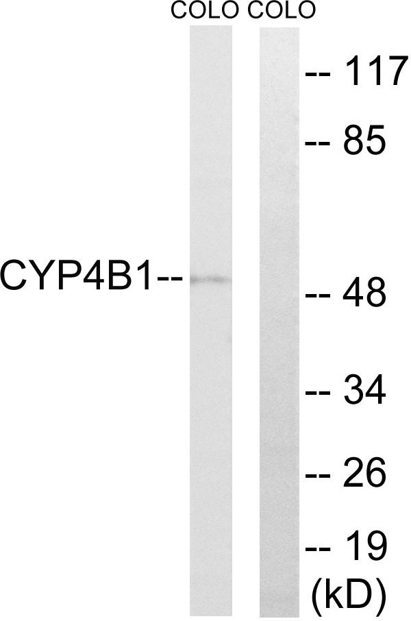 Western blot analysis of lysates from COLO cells, using Cytochrome P450 4B1 Antibody. The lane on the right is blocked with the synthesized peptide.