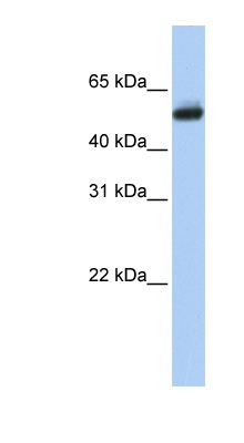 CYP4B1 antibody Western blot of Fetal Brain lysate. This image was taken for the unconjugated form of this product. Other forms have not been tested.
