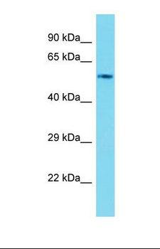 Cyp4f17 Antibody - Western blot of Mouse Kidney. Cyp4f17 antibody dilution 1.0 ug/ml.  This image was taken for the unconjugated form of this product. Other forms have not been tested.