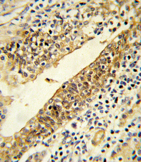 CYP51A1 / CYP51 Antibody - Formalin-fixed and paraffin-embedded human prostate carcinoma reacted with CYP51A1 Antibody , which was peroxidase-conjugated to the secondary antibody, followed by DAB staining. This data demonstrates the use of this antibody for immunohistochemistry; clinical relevance has not been evaluated.