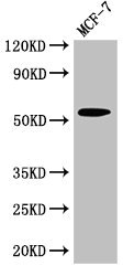 Western Blot Positive WB detected in:MCF-7 whole cell lysate All Lanes:CYP51A1 antibody at 2.7µg/ml Secondary Goat polyclonal to rabbit IgG at 1/50000 dilution Predicted band size: 57,47 KDa Observed band size: 57 KDa