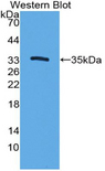 Western blot of recombinant CYP7A1.