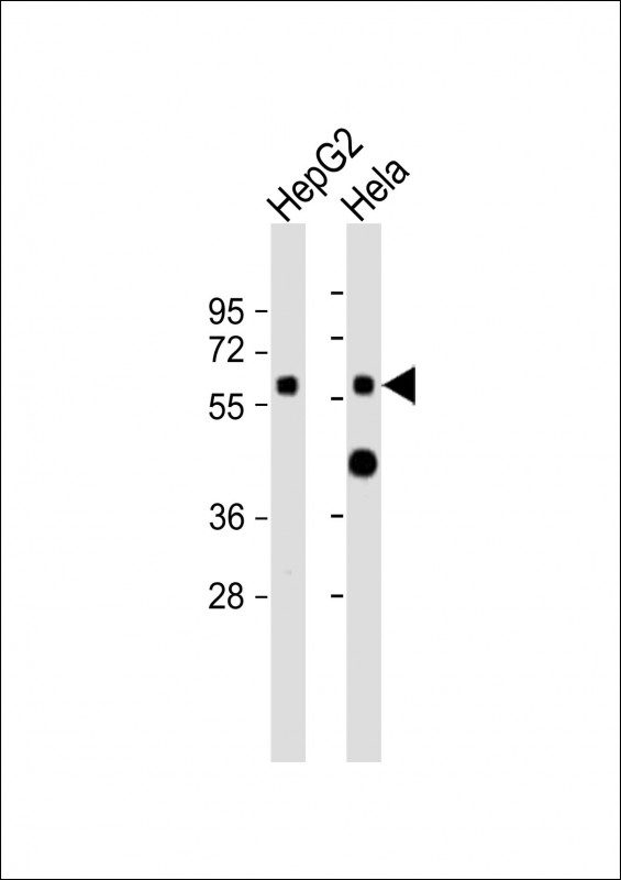 All lanes: Anti-CYP7A1 Antibody (N-term) at 1:2000 dilution. Lane 1: HepG2 whole cell lysates. Lane 2: HeLa whole cell lysates Lysates/proteins at 20 ug per lane. Secondary Goat Anti-Rabbit IgG, (H+L), Peroxidase conjugated at 1:10000 dilution. Predicted band size: 58 kDa. Blocking/Dilution buffer: 5% NFDM/TBST.