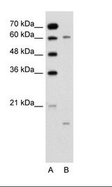 CYPIVA22 / CYP4A22 Antibody - A: Marker, B: Jurkat Cell Lysate.  This image was taken for the unconjugated form of this product. Other forms have not been tested.
