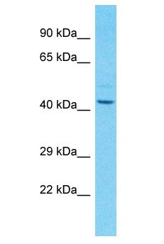 CYR61 antibody Western Blot of COLO205. Antibody dilution: 3 ug/ml.  This image was taken for the unconjugated form of this product. Other forms have not been tested.