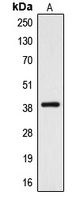 Western blot analysis of CYSLTR2 expression in A10 (A) whole cell lysates.