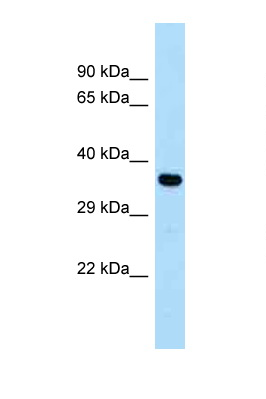 CYSLTR1 / CYSLT1 antibody Western blot of Fetal Heart lysate. Antibody concentration 1 ug/ml.  This image was taken for the unconjugated form of this product. Other forms have not been tested.