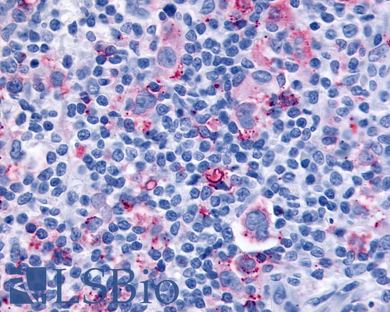 Anti-CYSLTR1 / CYSLT1 antibody IHC of human Lymph Node, Hodgkins Lymphoma. Immunohistochemistry of formalin-fixed, paraffin-embedded tissue after heat-induced antigen retrieval.