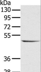 Western blot analysis of Raji cell, using CYTH1 Polyclonal Antibody at dilution of 1:200.