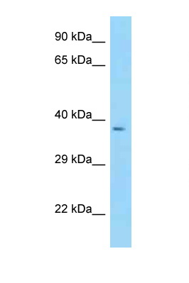 CYTIP antibody Western blot of Fetal Heart lysate. Antibody concentration 1 ug/ml.  This image was taken for the unconjugated form of this product. Other forms have not been tested.