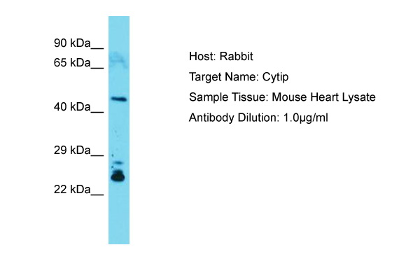 CYTIP Antibody -  This image was taken for the unconjugated form of this product. Other forms have not been tested.