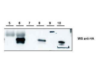 Anti-Cybr Antibody - Western Blot. Western blot of anti-Cybr antibody shows detection of recombinant Cybr using anti-HA tag antibody after immunoprecipitation using anti-Cybr. Lane 5 contains lysate from control HEK293 cells. Lane 6 shows IP/WB of HEK293 cells expressing Cybr-HA. Lane 7 and 8 are loaded similarly to lanes 5 and 6 but were immunoprecipitated with anti-HA. Lane 9 contains marker. Lane 10 contains purified CybrHA. Personal Communication, V. Coppola, NCI, Bethesda, MD.