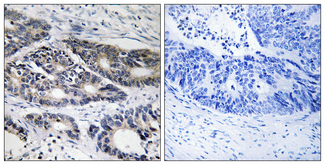 Immunohistochemistry analysis of paraffin-embedded human colon carcinoma, using Cytochrome P450 2R1 Antibody. The picture on the right is blocked with the synthesized peptide.