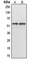 Cytochrome P450 CYP1A1/2 Antibody - Western blot analysis of Cytochrome P450 1A1/2 expression in MCF7 (A); HeLa (B) whole cell lysates.