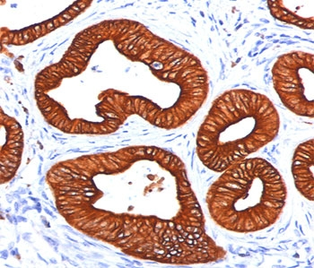 Cytokeratin 1+8 Antibody - Cytokeratin 18 antibody DC10 immunohistochemistry sweat gland.  This image was taken for the unmodified form of this product. Other forms have not been tested.