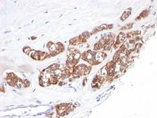 Cytokeratin 1+8 Antibody - Formalin-fixed, paraffin-embedded human breast carcinoma stained with anti-Cytokeratin 18 antibody (SPM510).  This image was taken for the unmodified form of this product. Other forms have not been tested.