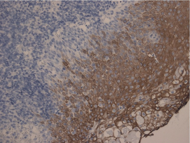 Cytokeratin 10+13 Antibody - Immunohistochemistry staining of tonsil (paraffin-embedded sections) with anti-Cytokeratin 10+13, (DE-K13).  The antibody DE-K13 stains only Cytokeratin 13 when used on formalin-fixed, paraffin-embedded tissue sections.