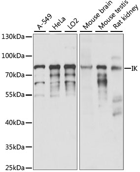Cytokine IK Antibody - Western blot analysis of extracts of various cell lines, using IK antibody at 1:1000 dilution. The secondary antibody used was an HRP Goat Anti-Rabbit IgG (H+L) at 1:10000 dilution. Lysates were loaded 25ug per lane and 3% nonfat dry milk in TBST was used for blocking. An ECL Kit was used for detection and the exposure time was 15S.