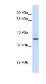 D-Binding Protein / DBP Antibody - DBP antibody Western blot of Fetal Heart lysate. This image was taken for the unconjugated form of this product. Other forms have not been tested.