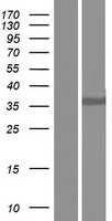 D-Binding Protein / DBP Protein - Western validation with an anti-DDK antibody * L: Control HEK293 lysate R: Over-expression lysate