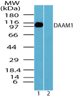 DAAM1 Antibody - Western blot of DAAM1 in human skeletal muscle lysate in the 1) absence and 2) presence of immunizing peptide using Polyclonal Antibody to DAAM1 at 5.0 ug/ml.