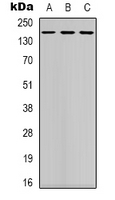 Western blot analysis of DAP Kinase 1 expression in K562 (A); mouse brain (B); NIH3T3 (C) whole cell lysates.