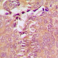 DAPK1 / DAP Kinase Antibody - Immunohistochemical analysis of DAP Kinase 1 staining in human breast cancer formalin fixed paraffin embedded tissue section. The section was pre-treated using heat mediated antigen retrieval with sodium citrate buffer (pH 6.0). The section was then incubated with the antibody at room temperature and detected using an HRP polymer system. DAB was used as the chromogen. The section was then counterstained with hematoxylin and mounted with DPX.