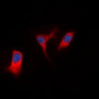 Immunofluorescent analysis of DAP Kinase 1 staining in K562 cells. Formalin-fixed cells were permeabilized with 0.1% Triton X-100 in TBS for 5-10 minutes and blocked with 3% BSA-PBS for 30 minutes at room temperature. Cells were probed with the primary antibody in 3% BSA-PBS and incubated overnight at 4 deg C in a humidified chamber. Cells were washed with PBST and incubated with a DyLight 594-conjugated secondary antibody (red) in PBS at room temperature in the dark. DAPI was used to stain the cell nuclei (blue).