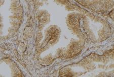 DAPK1 / DAP Kinase Antibody - 1:100 staining mouse colon tissue by IHC-P. The sample was formaldehyde fixed and a heat mediated antigen retrieval step in citrate buffer was performed. The sample was then blocked and incubated with the antibody for 1.5 hours at 22°C. An HRP conjugated goat anti-rabbit antibody was used as the secondary.