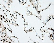 DAPK2 / DAP Kinase 2 Antibody - Immunohistochemical staining of paraffin-embedded lung tissue using anti-DAPK2 mouse monoclonal antibody. (Dilution 1:50).
