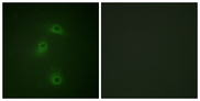 Immunofluorescence analysis of COS7 cells, using DAPK2 (Phospho-Ser318) Antibody. The picture on the right is blocked with the phospho peptide.
