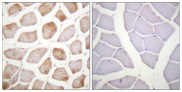 Immunohistochemistry analysis of paraffin-embedded human skeletal muscle, using DAPK2 (Phospho-Ser318) Antibody. The picture on the right is blocked with the phospho peptide.